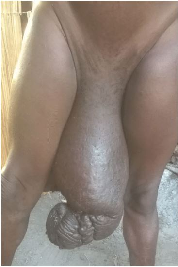 Man With Long Penis 95