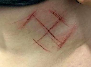 Investigação e laudo apontam que jovem ferida com suástica se automutilou