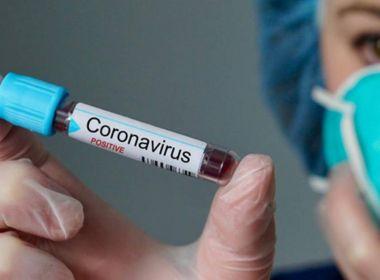 Notícia sobre Cuba ter produzido vacina contra coronavírus é falsa