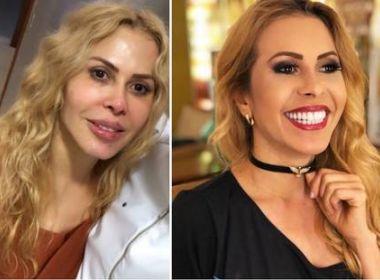 'Febre' entre os famosos, harmonização facial levanta discussão sobre 'padrão de beleza'
