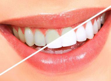 TJ-BA pagará quase R$ 39 mil por kits de clareamento dental para servidores e juízes