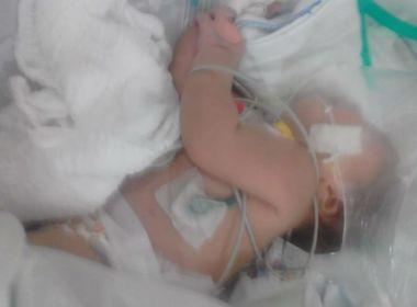 Conquista: Família de bebê picada por escorpião se muda com ajuda de doações