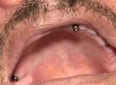Itabuna: Vítima de falso dentista diz que acusado chegou a extrair 9 dentes de 1 vez