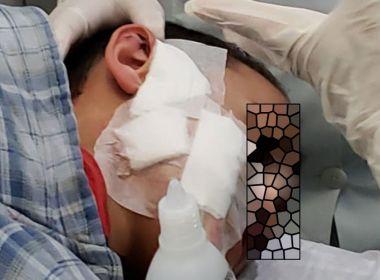 Brumado: Menino de nove anos é atacado por Pitbull e leva 15 pontos no rosto