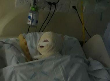 Bebê sofre queimadura no rosto dentro de sala de cirurgia após explosão de equipamento