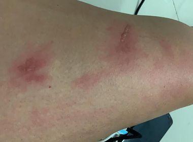 Itaparica: Mulher relata bolhas e coceira no corpo após banho de mar
