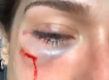 Lauro de Freitas: Blitz Music Bar afasta funcionários após agressão a mulher