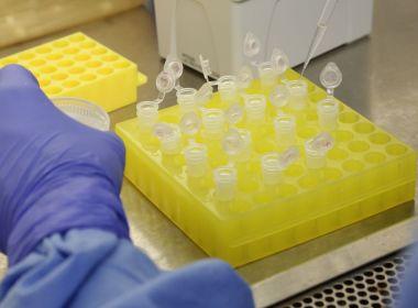 Número de casos confirmados de Covid-19 passa de 2 milhões no mundo, diz universidade
