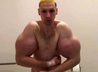Após nova tentativa de aumentar braços, 'Popeye russo' diz estar gravemente doente