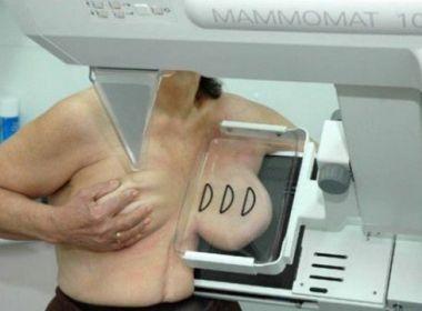 Bahia está em primeiro lugar no ranking de cobertura nacional de mamografia
