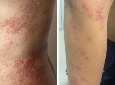 Número de casos de dermatite misteriosa que atinge Salvador chegaa 79, aponta Secretaria