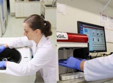Laboratório brasileiro solicita patente internacional para novo exame de próstata