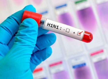 Suspeita de morte por H1N1 é investigada em Eunápolis, confirma Sesab