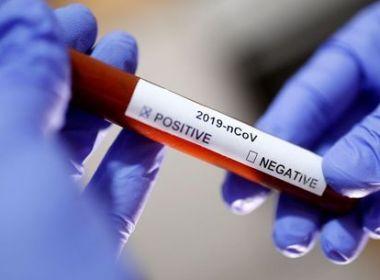 Brasil registra 77 mortes e 2.915 casos confirmados do novo coronavírus