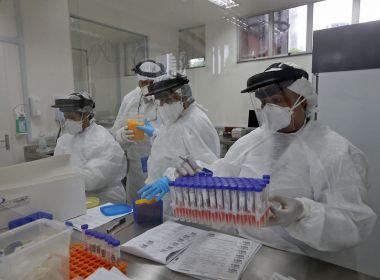 Brasil tem total de 57.622 mortes e registra 30.476 novos casos de Covid-19 neste domingo
