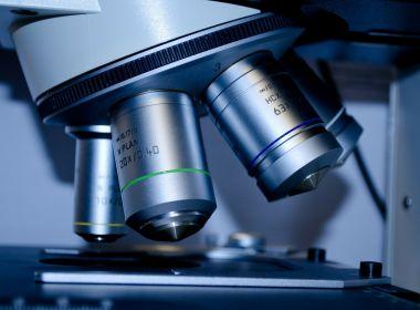 Pesquisadores estudam mulher que pode ter se curado da Aids sem tratamento médico