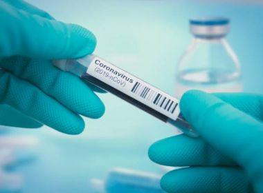 Covid-19: China coleta amostras no ânus para diagnóstico: 'Aumenta taxa de detecção'