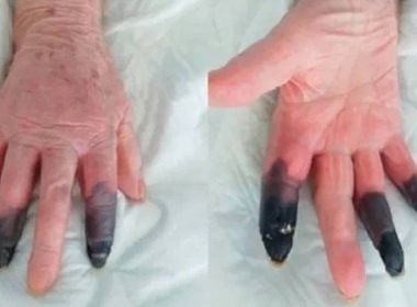 Em condição rara causada pela Covid-19, paciente tem dedos amputados na Itália